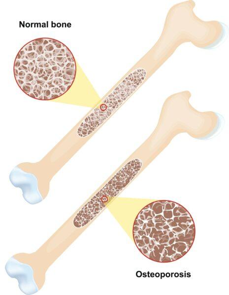 Knochen mit normaler Struktur und Knochen mit Osteoporose